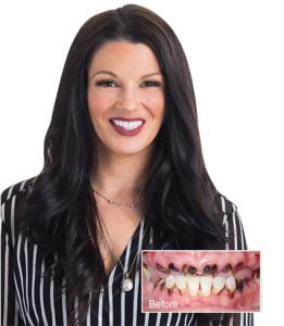 Cara full mouth dental implant patient