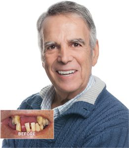 Marc smiling with dental implants, replace missing teeth