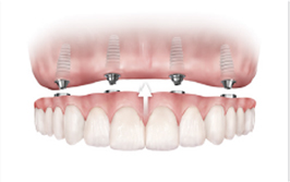 Picture of dental implants replacing several teeth