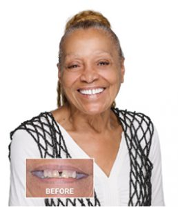 Picture of dental implant patient smiling