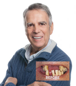 Marc's before and after TeethXpress picture