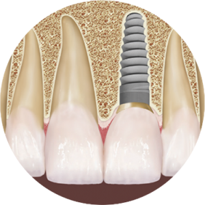 Picture of dental implant next to teeth