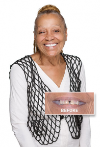 Millie's Dental Implant Story