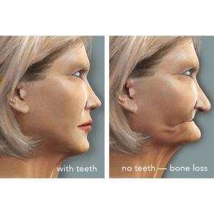 Image of jawbone loss