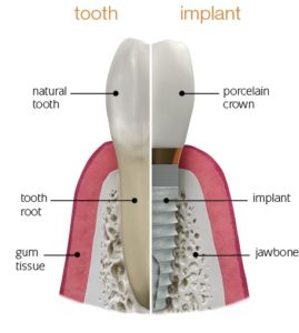 dental implant compared to a natural tooth