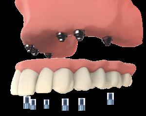 Dental implants for upper teeth