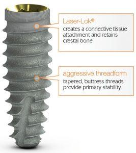 Laser-Lok, threadform, dental implants last