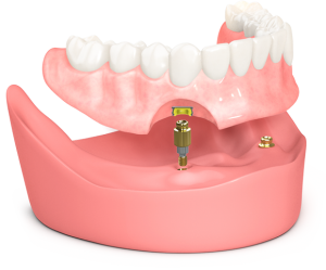 Removable full mouth dental implants on two implants