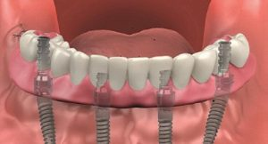 Full mouth dental implants; All-on-4