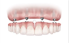 Image of TeethXpress, sometimes call full-mouth dental implants